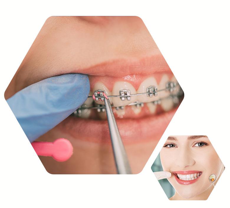 especialidades-ortodontia