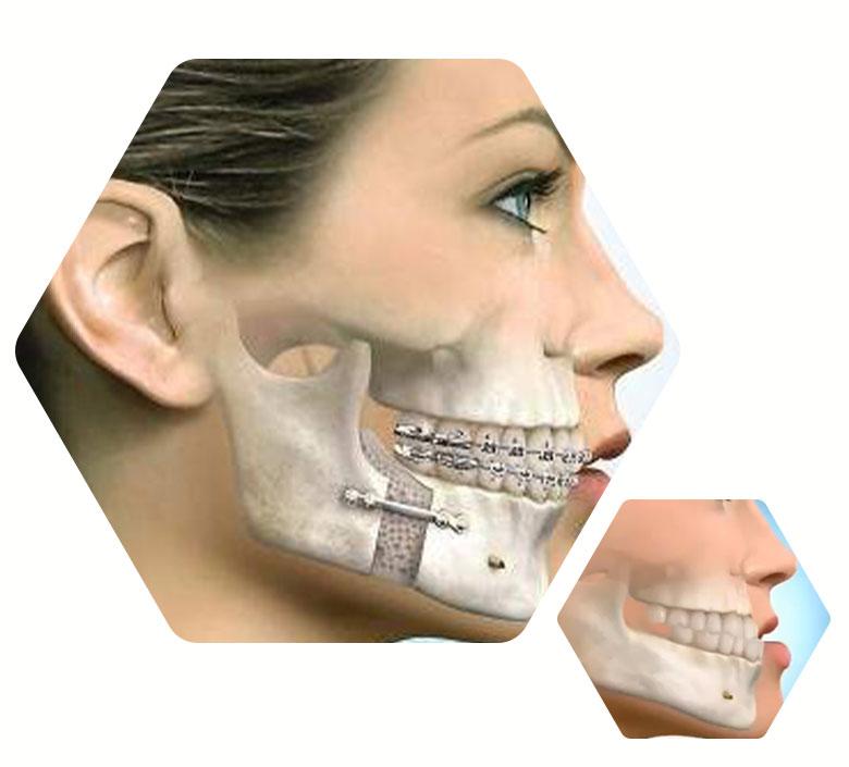 especialidades-cirurgia_ortognatica1